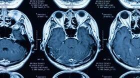 Estudio: Obesidad puede alterar la forma y estructura del cerebro