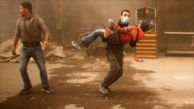 Informe: Coalición de EEUU mató en 5 meses a 1600 civiles en Siria