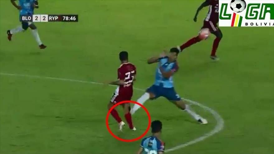 La terrible lesión de un futbolista boliviano recorre el mundo
