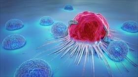 Principales factores del cáncer en el ser humano