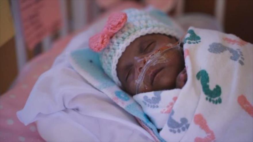 Vídeo: La bebé más pequeña del mundo nació con 245 gramos
