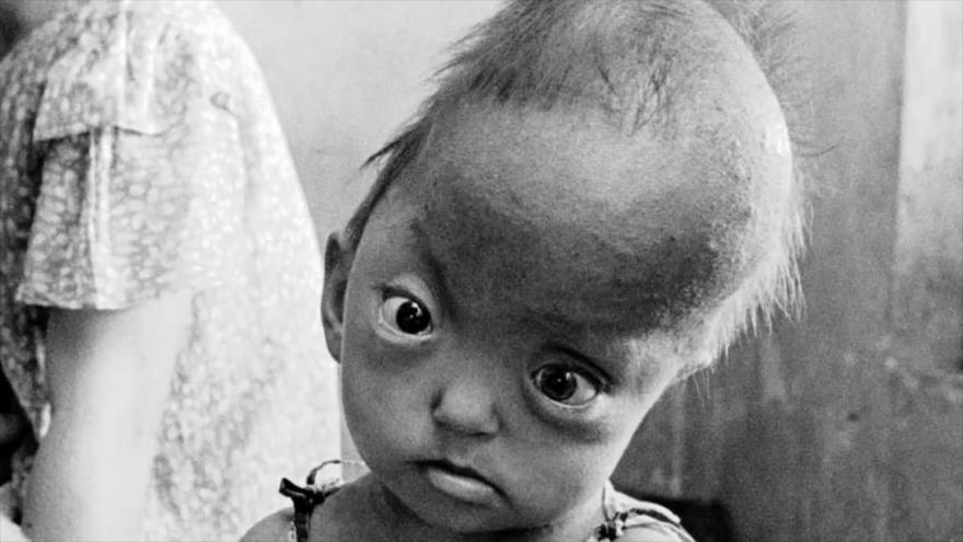 Fotos que sacuden al mundo: Niños vietnamitas con defectos debido al Agente Naranja
