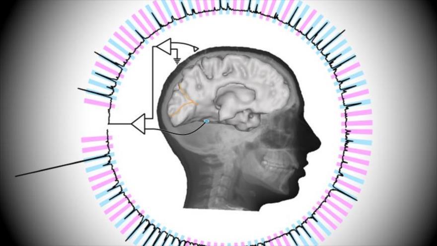 Científicos identifican el gen NAPRT1, responsable de la esquizofrenia.