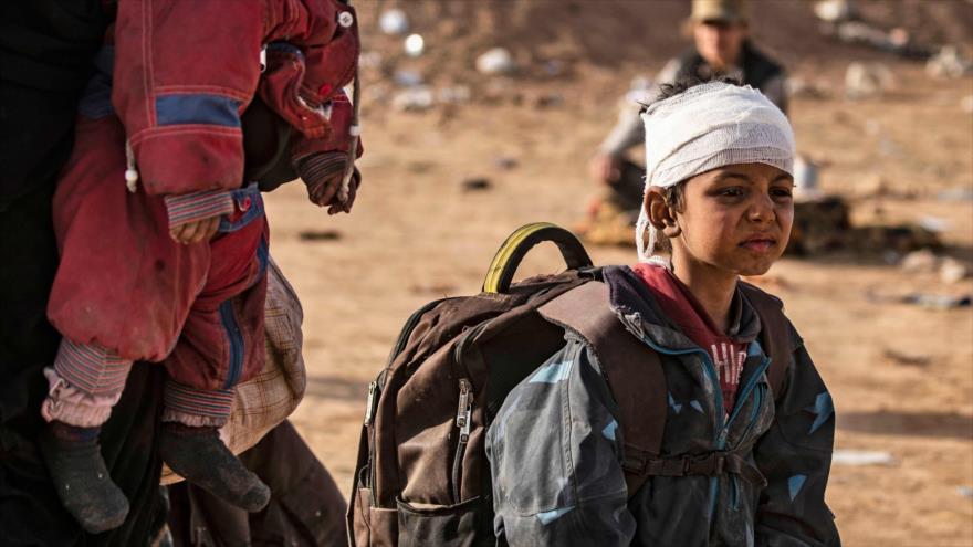 Un niño sirio, con la cabeza vendada, liberado de las garras del grupo terrorista Daesh, llega a Al-Baghouz, Deir Ezzor, 5 marzo de 2019. (Foto: AFP)