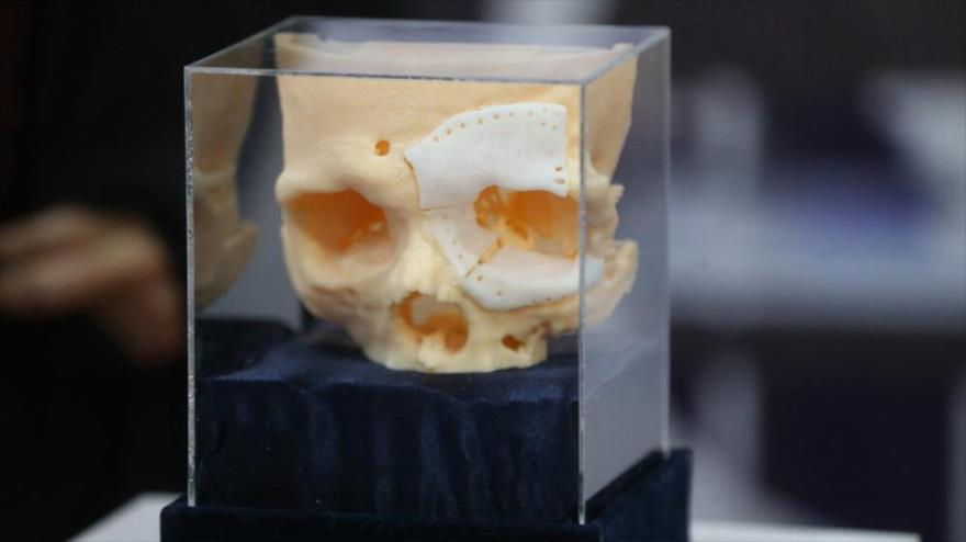 Vídeo: Irán fabrica huesos artificiales en tres dimensiones