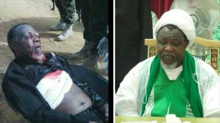Médicos de 7 países alertan a Nigeria sobre salud de Al-Zakzaky