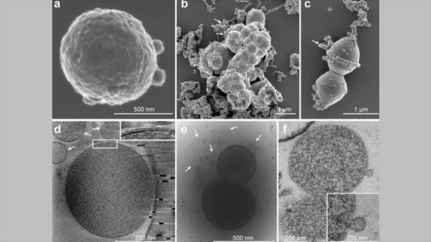 Caracterización microscópica del microbio Lokiarchaeota.