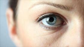 ¿Cómo se pueden tratar y remediar las ojeras?