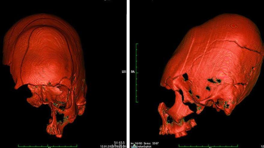 Cráneo con deformidad oblicua de uno de los adolescentes, hallados en Croacia.