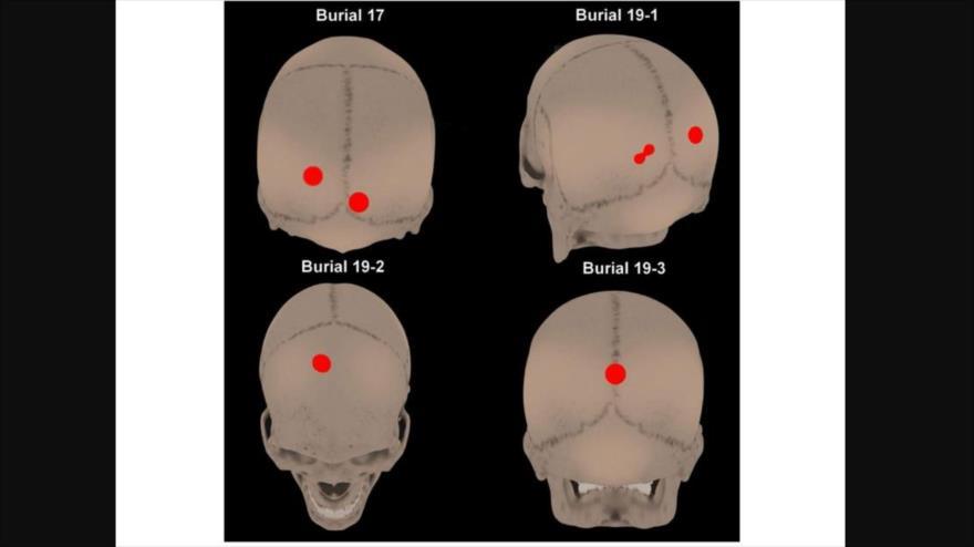 Imagen de los cuatro cráneos con perforaciones y marcas extrañas alrededor de las mandíbulas hallados en el Valle de Copiapó (norte de Chile).