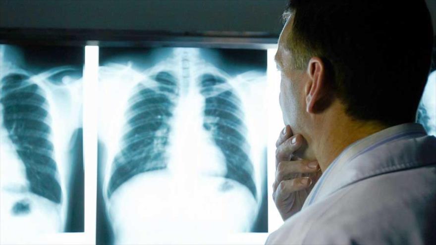 El cáncer de pulmón, que en todo el mundo mata a millones de personas al año, es una enfermedad común en muchos países.