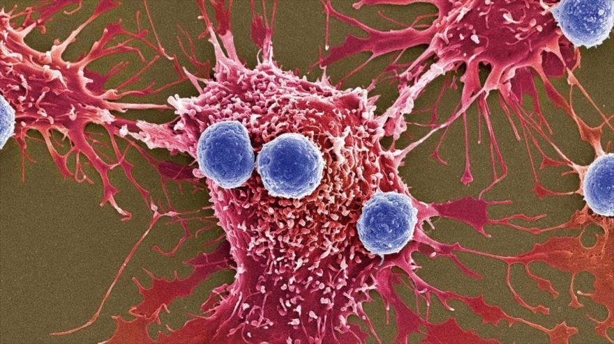 Células cancerosas sobreviven a la quimioterapia con canibalismo   HISPANTV