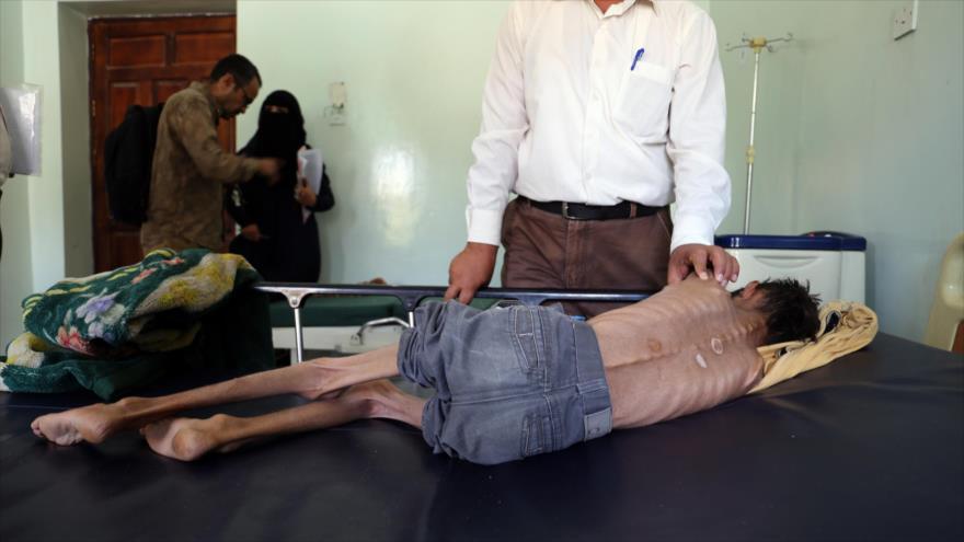 Un niño yemení, de 10 años, sufre de desnutrición severa en un hospital, 30 de octubre de 2018. (Foto: AFP)