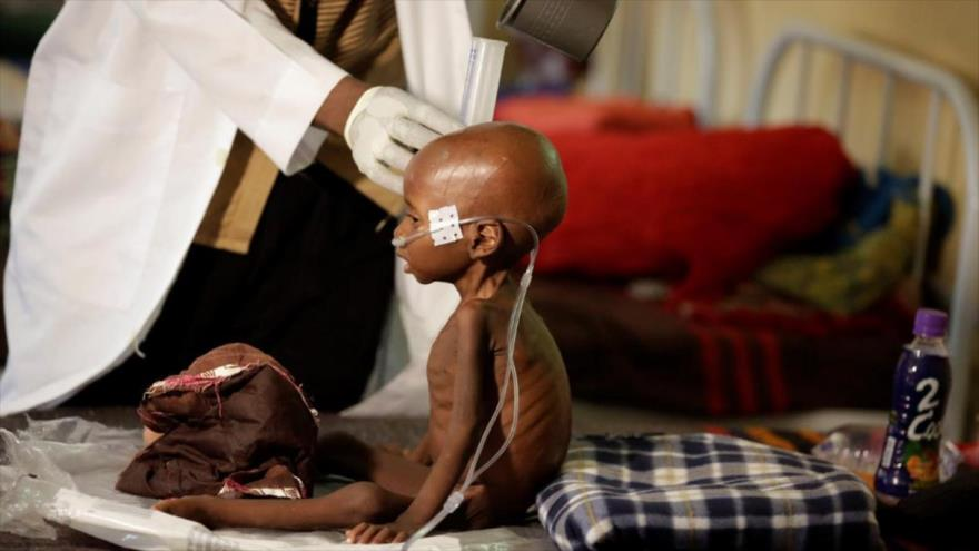 Unicef: Un tercio de niños del mundo sufre desnutrición u obesidad | HISPANTV