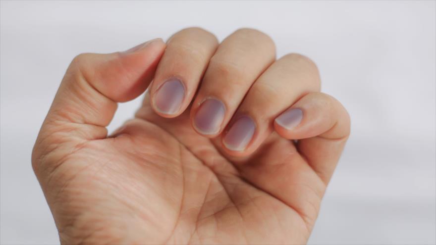 ¿Qué te dice el color de las uñas sobre tu salud?