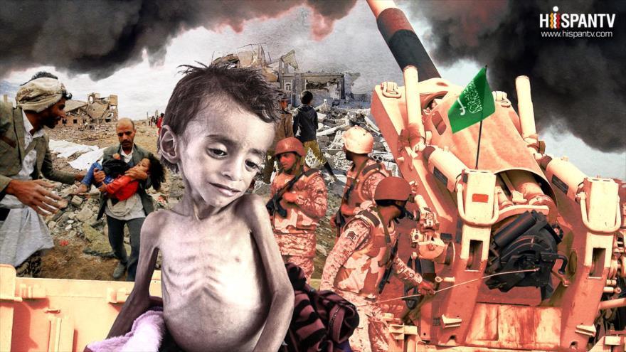 GUERRA CONTRA YEMEN: UN SILENCIO A VOZ EN GRITO | HISPANTV