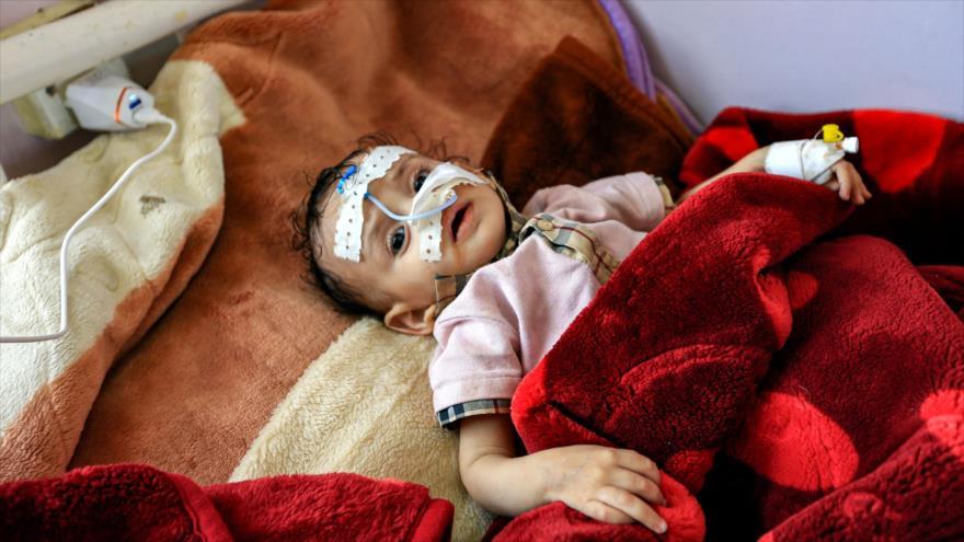 ONU: Un niño muere cada 11 minutos en Yemen por la agresión saudí | HISPANTV