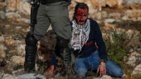 Disparos de fuerzas israelíes hieren a 10 palestinos en Ramalá