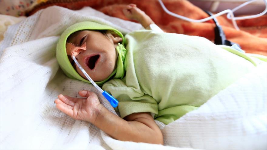 Un niño que sufre de desnutrición en el hospital Al-Sabeen en la capital yemení, Saná, 5 de octubre de 2019. (FOTO: AFP)