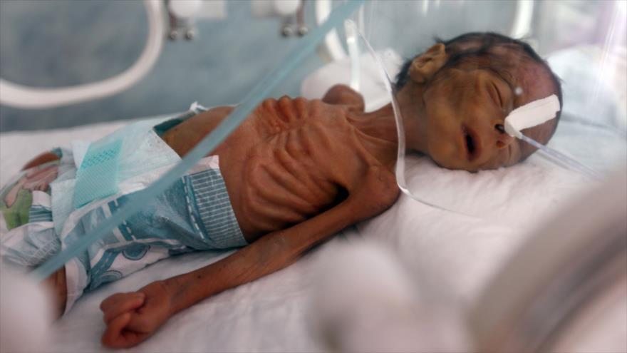 Bloqueo saudí contra Yemen mata a 1 niño cada 10 minutos   HISPANTV