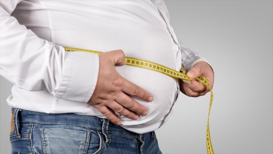 Estudio revela que la obesidad altera el cerebro de los adolescentes.