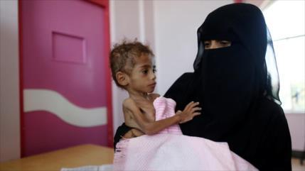 Niños yemeníes sufrirán hambre durante 20 años por guerra saudí