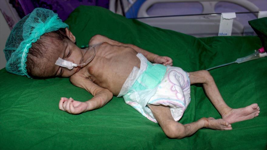 Un niño yemení malnutrido recibe tratamiento en la ciudad de Al-Hudayda, 27 de junio de 2019. (Foto: AFP)