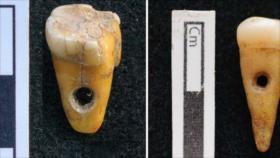 Usan dientes humanos como joyería en Turquía hace 8500 años