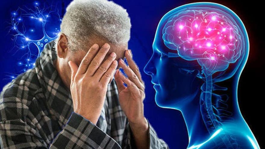 Descubren proteínas que pueden regular el desarrollo del alzhéimer