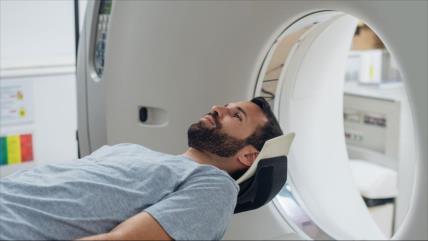 Médicos españoles hallan cómo frenar el cáncer cerebral más letal