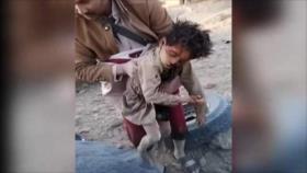 Unicef: 19 niños murieron en reciente ataque saudí en Yemen