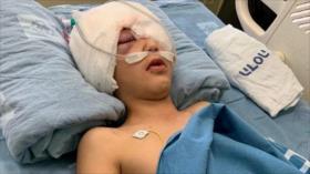 Vídeo: Niño palestino se queda ciego de un ojo por disparo israelí