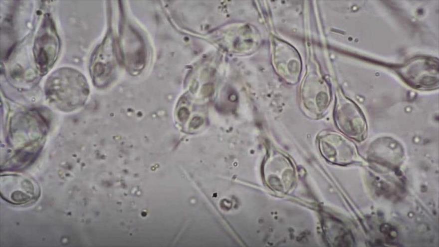 Parásito Henneguya salminicola visto bajo un microscopio.
