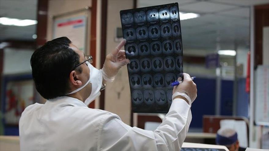 Un médico iraní está evaluando una radiografía de pulmón de un contagiado por el coronavirus en un hospital de Qom, 1 de marzo de 2020. (Foto: Tasnim)