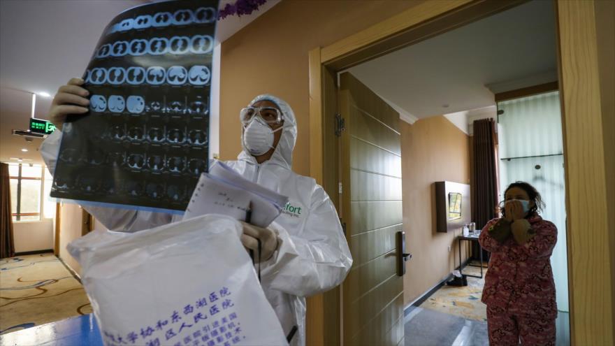 Un médico revisa radiografía de los pulmones de un afectado por el coronavirus en el hospital de Wuhan, China, 30 de enero de 2020. (Foto: AFP)