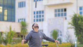 El Toque: 1- Rana de cristal 2- Construye sus propias prótesis 3- Yemení equilibrista 4- Palacio de Golestán en Teherán