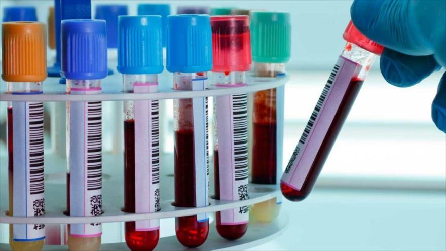 Un grupo de investigadores chinos realizó un estudio para determinar qué relación existe entre grupos sanguíneos y propagación del nuevo coronavirus (COVID-19).
