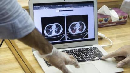 Irán usa inteligencia artificial para diagnosticar el COVID-19