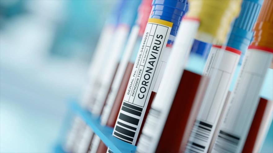 Un estudio indica que 8 semanas después de la infección de COVID-19, el nivel de anticuerpos se redujo en el 81 % de los pacientes asintomáticos observados.