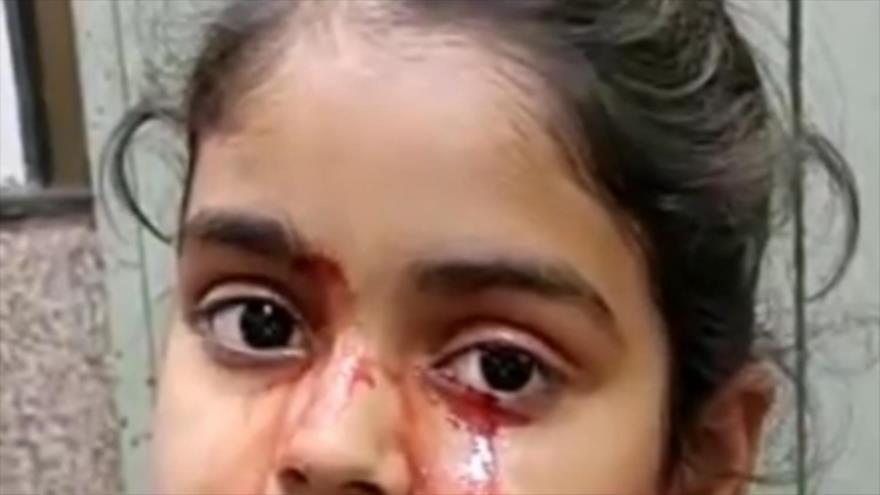 De los ojos de esta niña india brotan lágrimas de sangre todos los días.