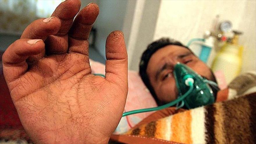 Veterano iraní de la guerra impuesta por Irak, víctima de las armas químicas, en un hospital en Teherán, capital de Irán.
