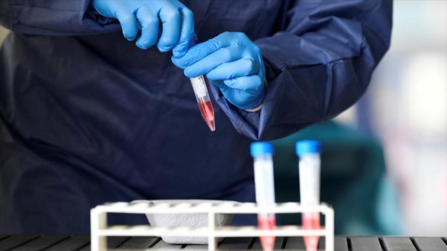 Científico advierte de la futura aparición de un nuevo coronavirus   HISPANTV