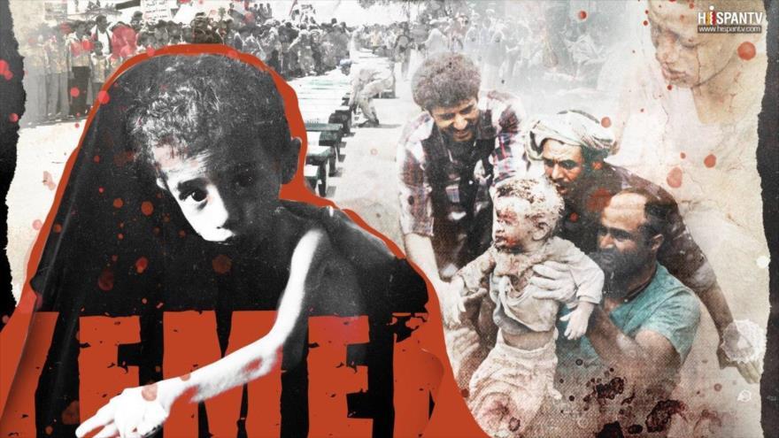 ¿Cómo el silencio de la ONU asesina a los niños en Yemen? | HISPANTV