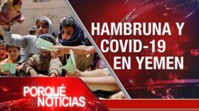 El Porqué de las Noticias: Yemen: Hambruna y COVID-19. Crisis del régimen israelí. Polémica gestión de Bolsonaro