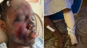 Ataque racista en Reino Unido: Atropellan con coche a joven negro