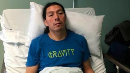Líder mapuche culpa al Gobierno de Chile si muere por huelga seca