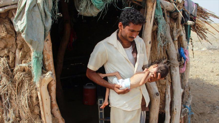 Padre de una niña de cinco años que sufre de desnutrición aguda, delante de su casa en el norte de Yemen, 23 de junio de 2020. (Foto: AFP)