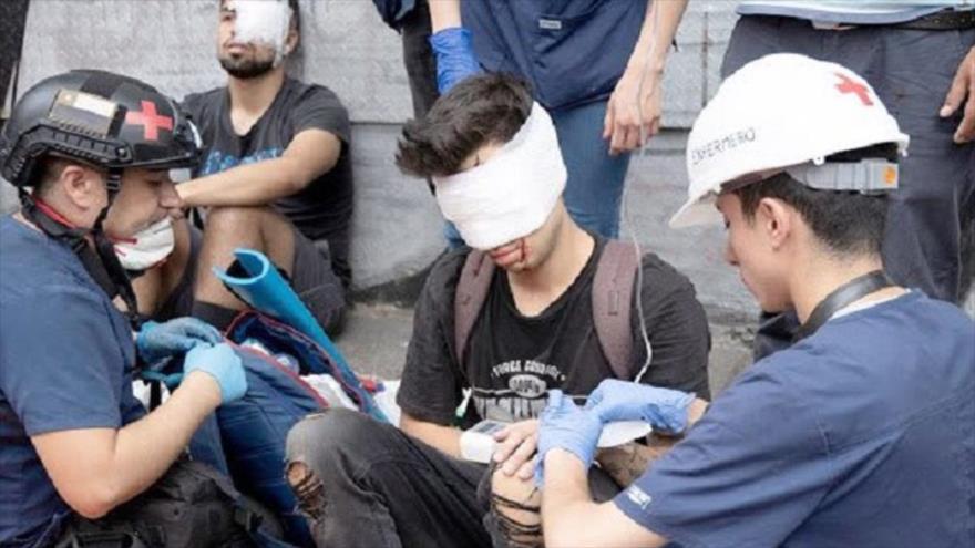 Fiscalía de Chile acusa a un policía de dejar ciego a un manifestante   HISPANTV