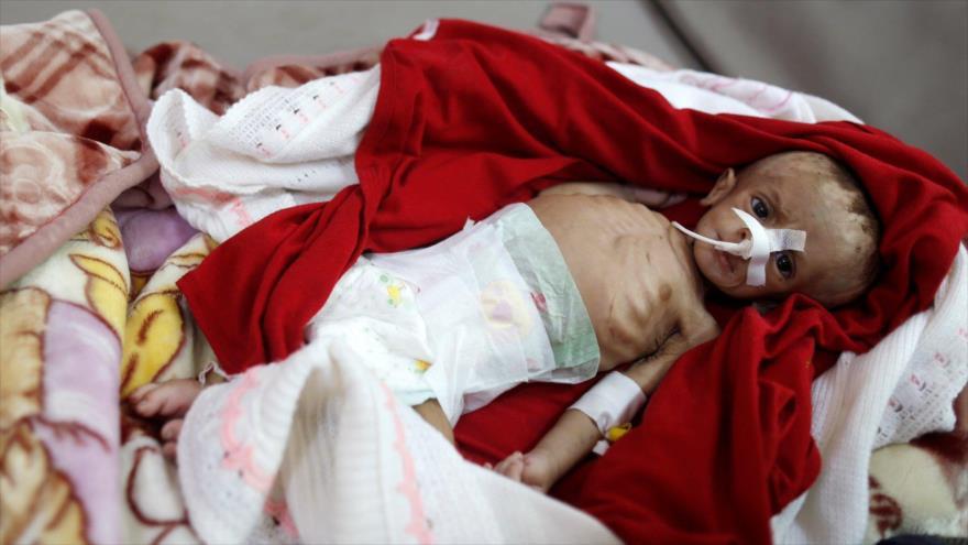 Un niño yace en una cama en la sala de desnutrición de un hospital en Saná, la capital de Yemen. (Foto: Reuters)