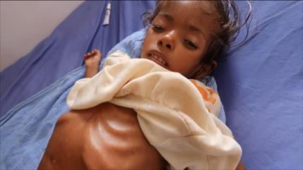Los niños yemeníes siguen muriendo por malnutrición